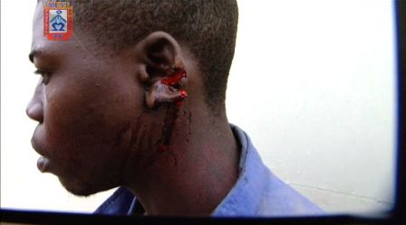 Lawlessness: Heartless Chinese Boss Slices Off Zambian Worker's Ear